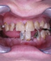 dental-implants-2-1