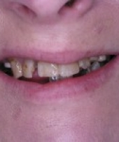 dental-implants-2-2