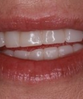 dental-implants-2-4