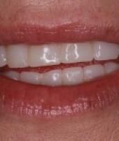 dental-implants-2-4