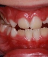 orthodontic_appliances-3