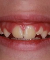 orthodontic_appliances-4
