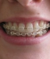 orthodontist-services-1-1