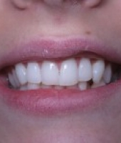 orthodontist-services-1-2