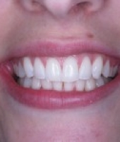 orthodontist-services-1-3