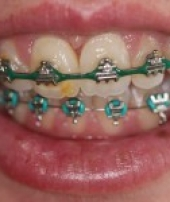 orthodontist-services-3-2