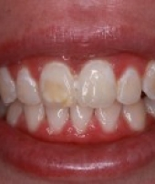 orthodontist-services-3-3