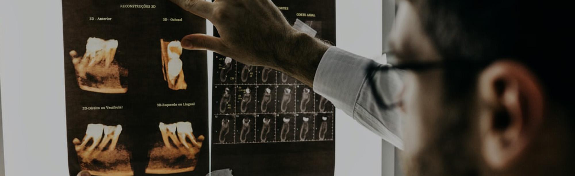 Importance of Dental Radiographs